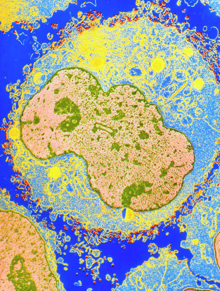 Wall Art - Photograph - F/col Tem Of T-cell Infected With Hiv Virus by Nibsc/science Photo Library