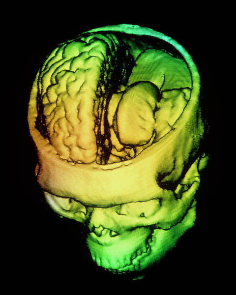 Cts Photograph - F/colour 3-d Ct Scan Of Human Brain Within Skull by Gjlp/science Photo Library