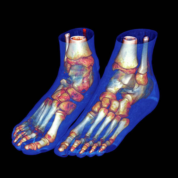 Multi-dimensional Wall Art - Photograph - Feet by Antoine Rosset/science Photo Library