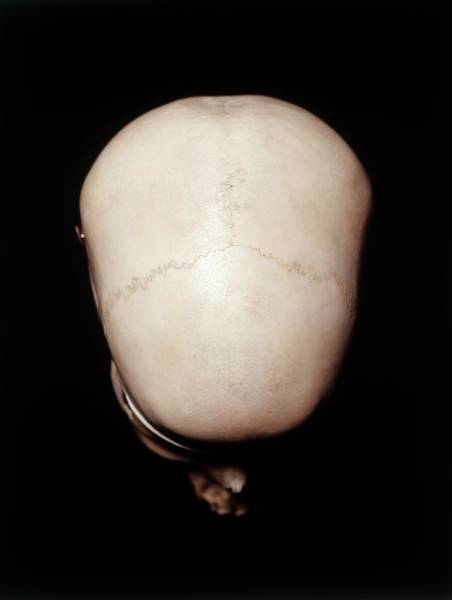 Bone Structure Wall Art - Photograph - Female Human Skull by Dorling Kindersley/uig