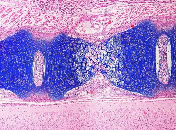 Vertebrae Photograph - Fetal Spine by Microscape