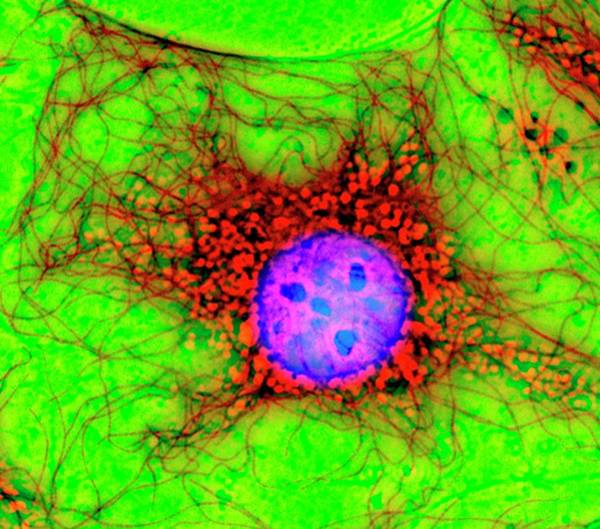 Wall Art - Photograph - Fibroblast Cell by Dr Jan Schmoranzer/science Photo Library