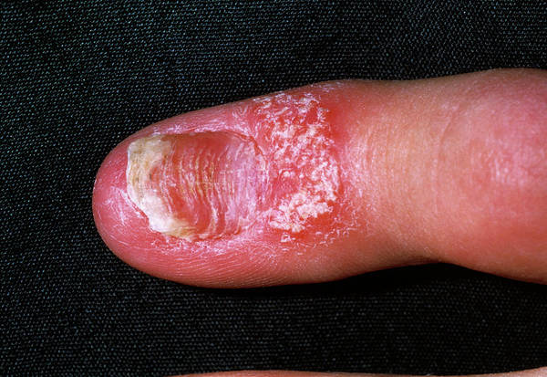 Fingernail Wall Art - Photograph - Fingernail Psoriasis by Dr P. Marazzi/science Photo Library