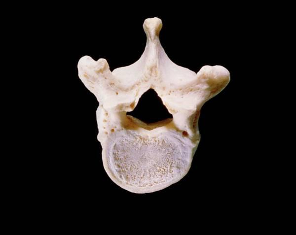 Vertebra Photograph - First Lumbar Vertebra by James Stevenson/science Photo Library.