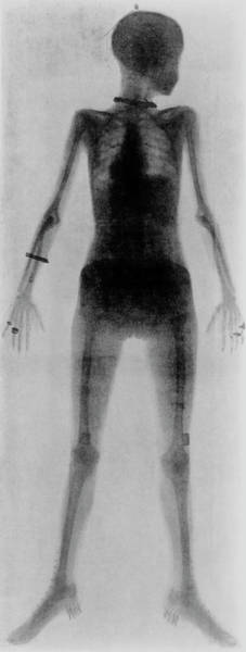 Wall Art - Photograph - First Whole Body X-ray by Science Photo Library