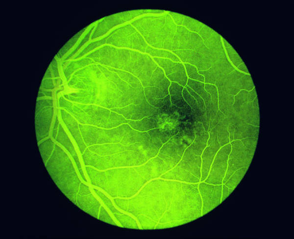 Wall Art - Photograph - Fluorescein Angiogram Of A Healthy Eye Retina by Paul Parker/science Photo Library