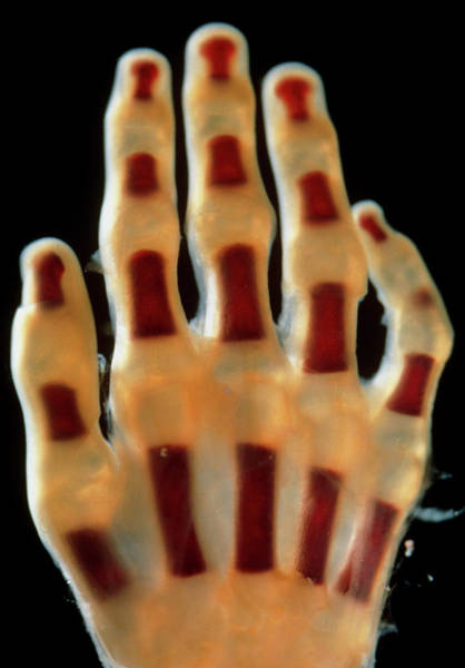 Developing Wall Art - Photograph - Foetal Hand Bones by Tissuepix/science Photo Library