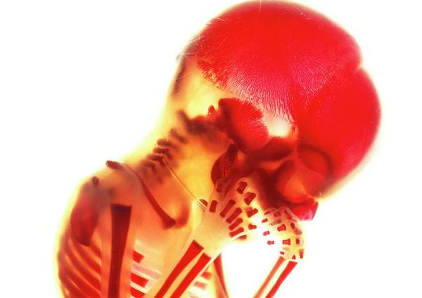 Developing Wall Art - Photograph - Foetal Skeleton by Tissuepix/science Photo Library