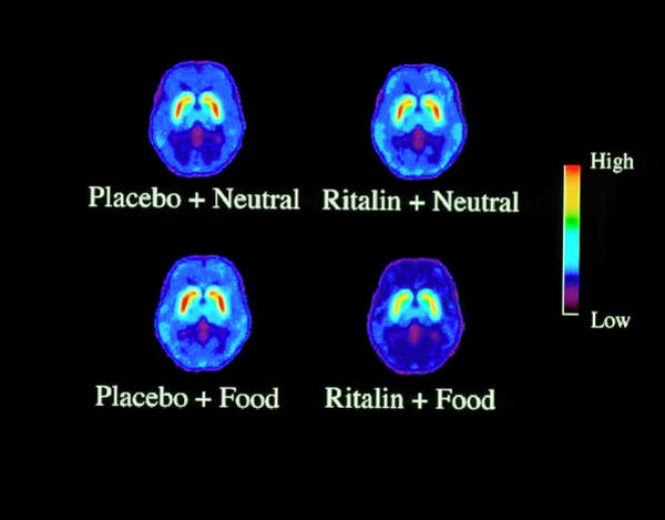Cerebral Photograph - Food Addiction Brain Research by Brookhaven National Laboratory/science Photo Library