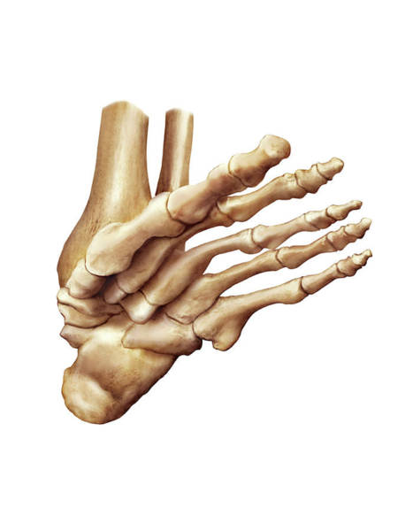Atlas Of Human Anatomy Wall Art - Photograph - Foot Deformations by Asklepios Medical Atlas