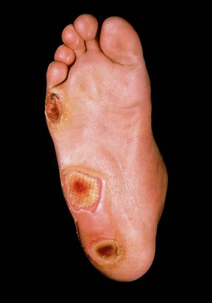 Wall Art - Photograph - Foot Ulcers In Diabetes by St Bartholomew Hospital/science Photo Library