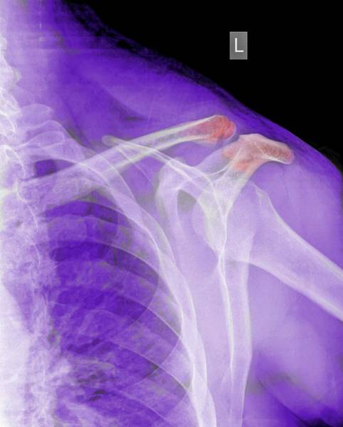 Radiograph Wall Art - Photograph - Fractured Clavicle by Photostock-israel
