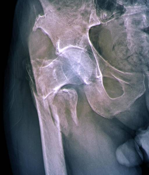 Radiological Photograph - Fractured Hip by Zephyr
