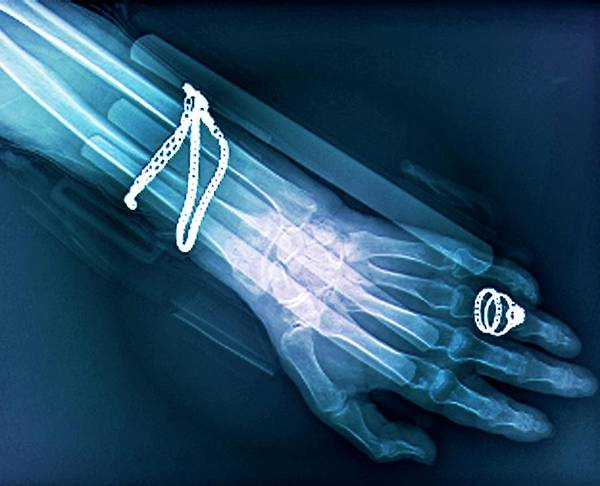 Radiological Photograph - Fractured Wrist by Zephyr