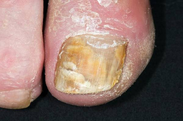 Infection Wall Art - Photograph - Fungal Nail Infection by Dr P. Marazzi/science Photo Library