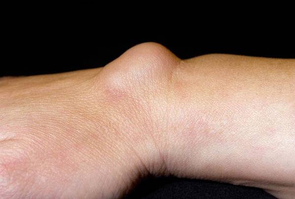 Bump Wall Art - Photograph - Ganglion On Wrist by Dr P. Marazzi/science Photo Library