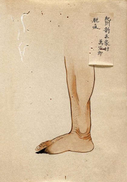 Infection Wall Art - Photograph - Gangrenous Toe by National Library Of Medicine