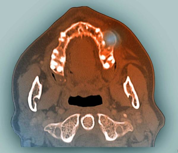 Radiological Photograph - Giant Cell Granuloma Of The Jaw by Zephyr