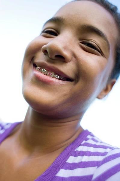 Dentistry Wall Art - Photograph - Girl Wearing Dental Braces by Ian Hooton/science Photo Library