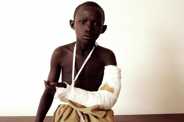 Bandage Photograph - Girl With A Broken Arm by Mauro Fermariello/science Photo Library
