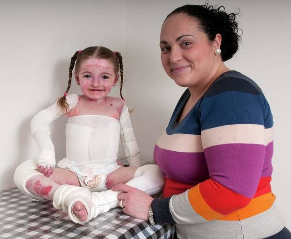 Bandage Photograph - Girl With Epidermylosis Bullosa & Mother by Science Photo Library