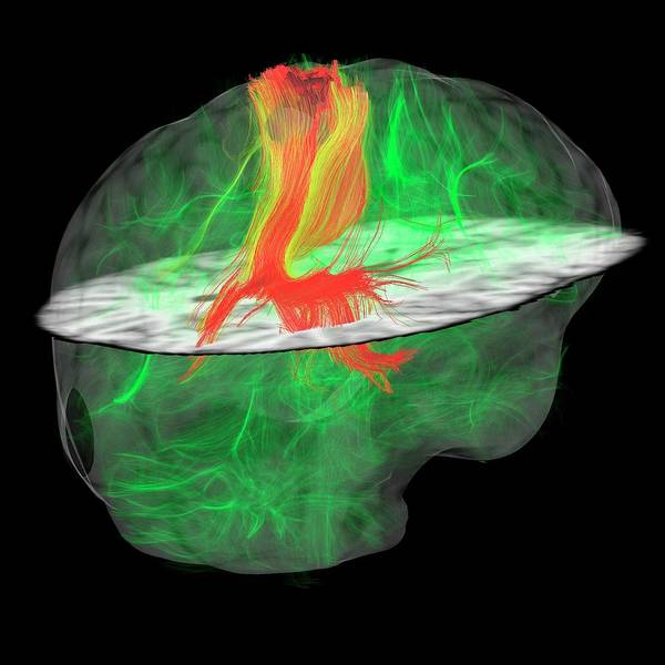 Nerves Photograph - Glioblastoma Brain Tumour by Sherbrooke Connectivity Imaging Lab/science Photo Library