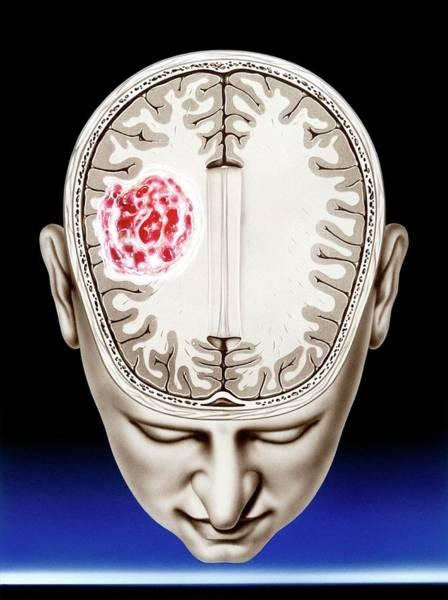 Brain Cancer Wall Art - Photograph - Glioma Brain Tumour by John Bavosi