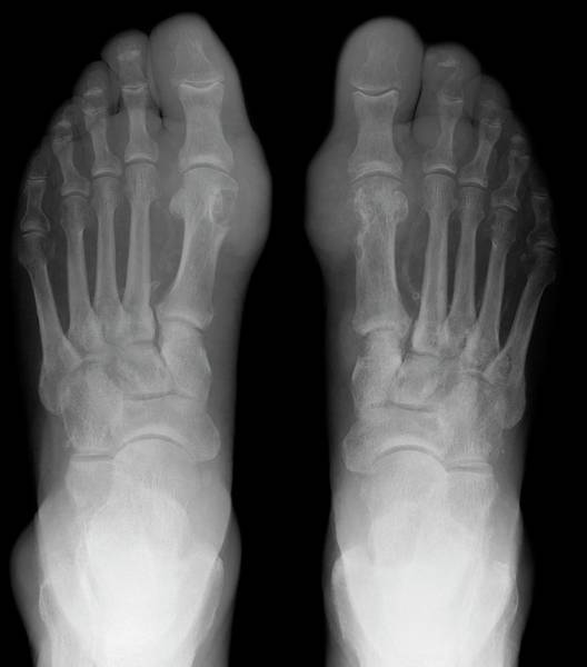 Deposit Photograph - Gout by Du Cane Medical Imaging Ltd