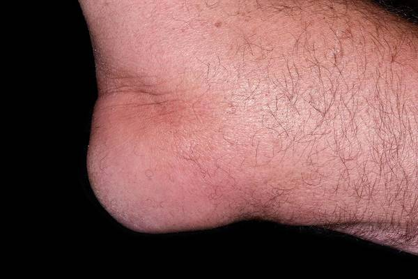 65 Photograph - Gout In The Elbow by Dr P. Marazzi/science Photo Library