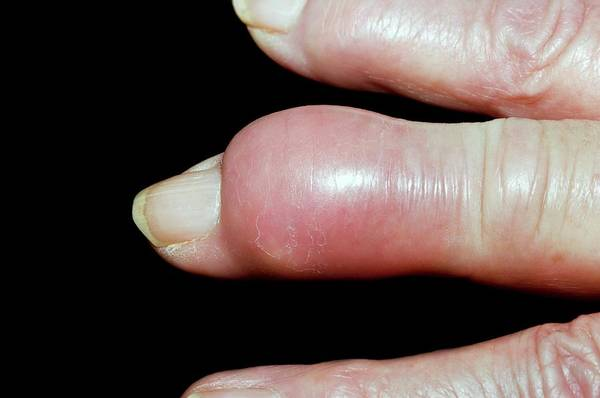 Inflammation Wall Art - Photograph - Gout Tophus On The Finger by Dr P. Marazzi/science Photo Library