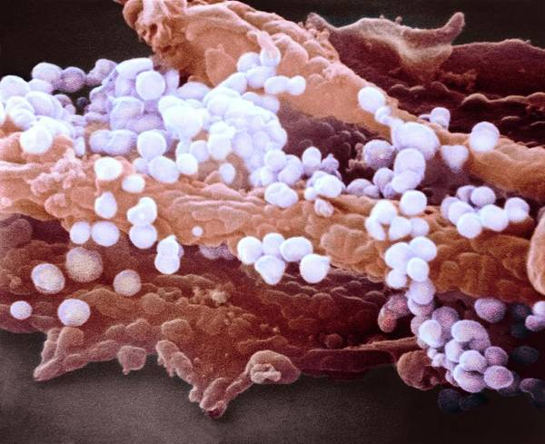 H1n1 Flu Virus Particles Art Print