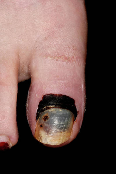 65 Photograph - Haematoma In Broken Big Toe by Dr P. Marazzi/science Photo Library