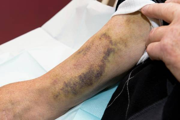 Wall Art - Photograph - Haemodialysis: Bruised Arm by Dr P. Marazzi/science Photo Library