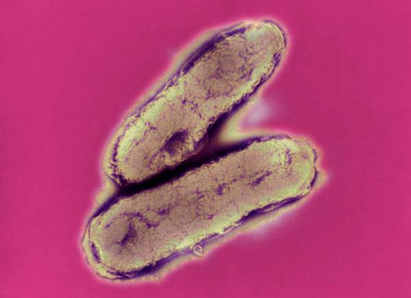 Wall Art - Photograph - Haemophilus Influenzae Bacteria by A. Dowsett, Public Health England/science Photo Library