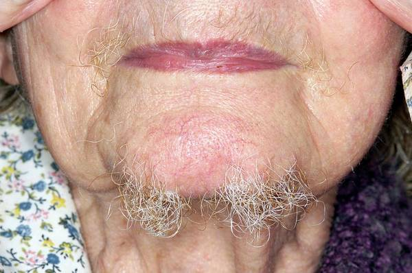 Hairy Photograph - Hair Growth On The Chin Of A Woman by Dr P. Marazzi/science Photo Library