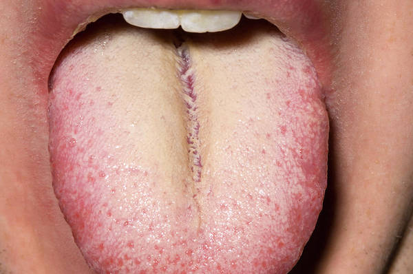 Hairy Photograph - Hairy Tongue by Dr P. Marazzi/science Photo Library
