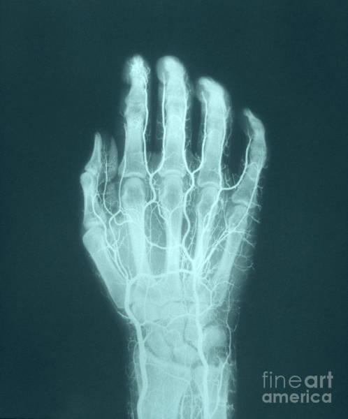 Photograph - Hand Arteriogram by VideoSurgery
