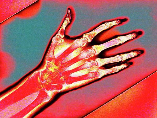 Hand Anatomy Wall Art - Photograph - Hand by Larry Berman