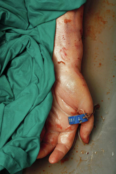Morgue Photograph - Hand Of A Corpse In A Mortuary by Mauro Fermariello/science Photo Library