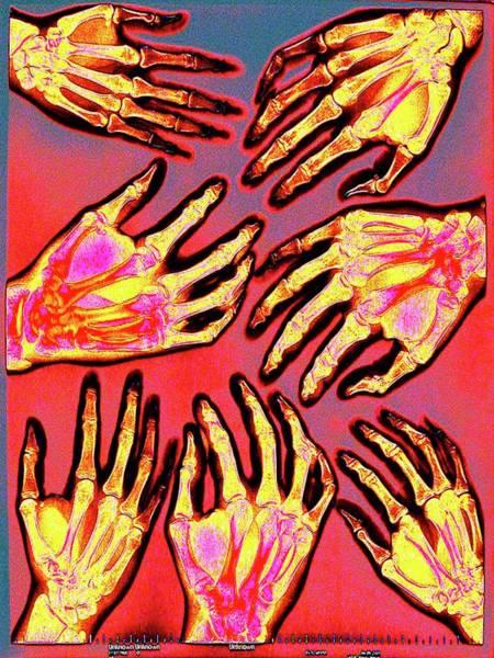 Hand Anatomy Wall Art - Photograph - Hands by Larry Berman
