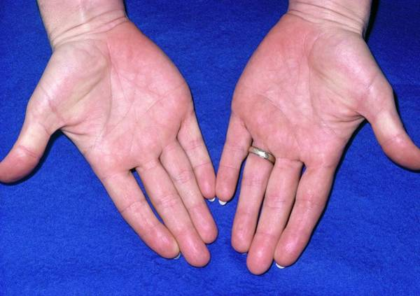 Excess Photograph - Hands Of Person Suffering From Xanthaemia by James Stevenson/science Photo Library
