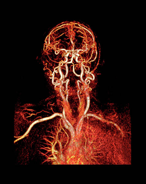 Multi-dimensional Wall Art - Photograph - Head And Neck Arteries by Antoine Rosset/science Photo Library