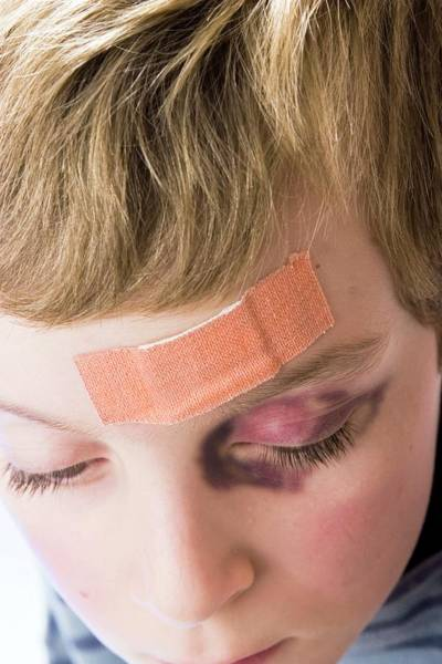 Wall Art - Photograph - Head Injury And Black Eye by Claire Deprez/reporters/science Photo Library