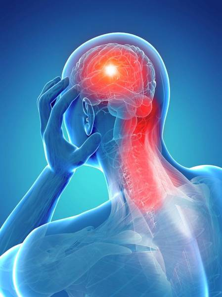Head And Shoulders Photograph - Headache Due To Muscle Pain by Sciepro/science Photo Library
