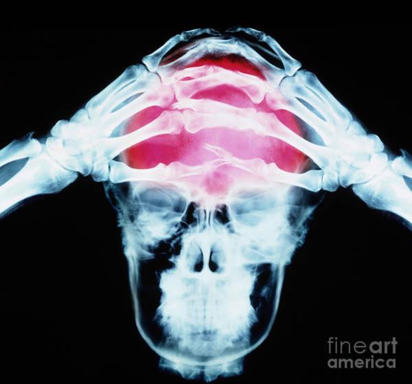Photograph - Headache by Erich Schrempp