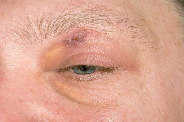 Wall Art - Photograph - Healing Eyelid Abscess by Dr P. Marazzi/science Photo Library