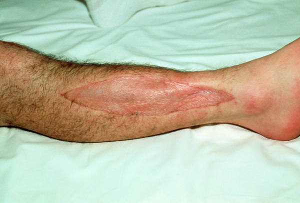 Heal Wall Art - Photograph - Healing Skin Graft On Patient's Leg by Mike Devlin/science Photo Library