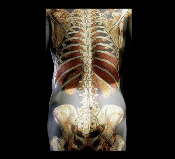 False Ribs Wall Art - Photograph - Healthy Spine by Zephyr
