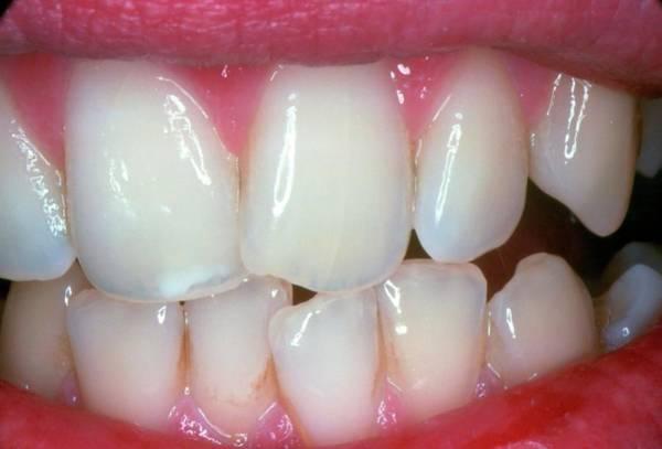Dentistry Wall Art - Photograph - Healthy Teeth by Jim Stevenson/science Photo Library