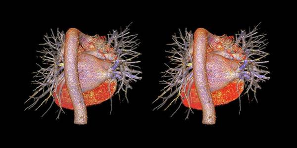Stereogram Photograph - Heart And Pulmonary Blood Vessels by K H Fung/science Photo Library